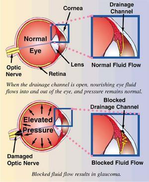 Glaucoma Management